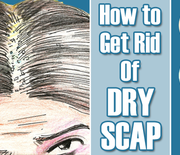 Thumb_get-rid-of-dry-scalp