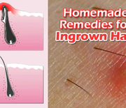 Thumb_get-rid-of-ingrown-hair