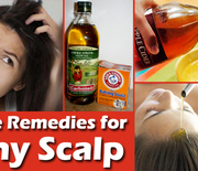 Thumb_remedies-for-itchy-scalp
