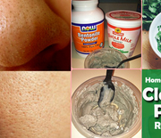 Thumb_remedies-for-clogged-pores