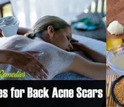 Thumb_back-acne-scars-remedies