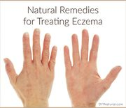 Thumb_natural-remedies-for-eczema-660x562