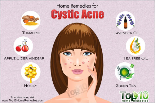 Cystic-acne-500