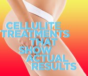 Thumb_cellulite-results_0