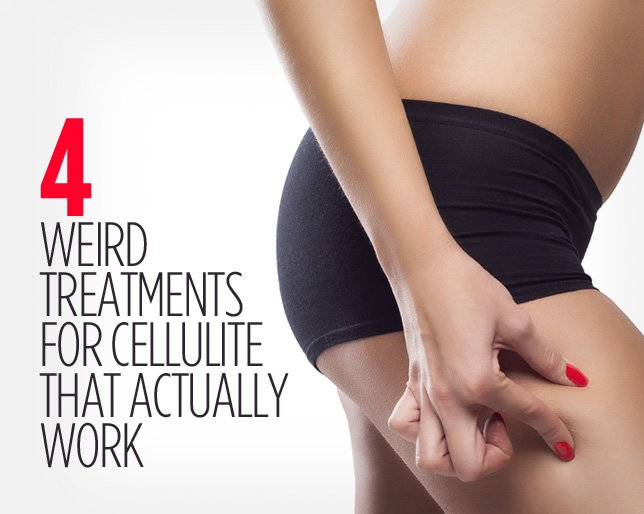 Wh-4-weird-treatments-cellulite_0