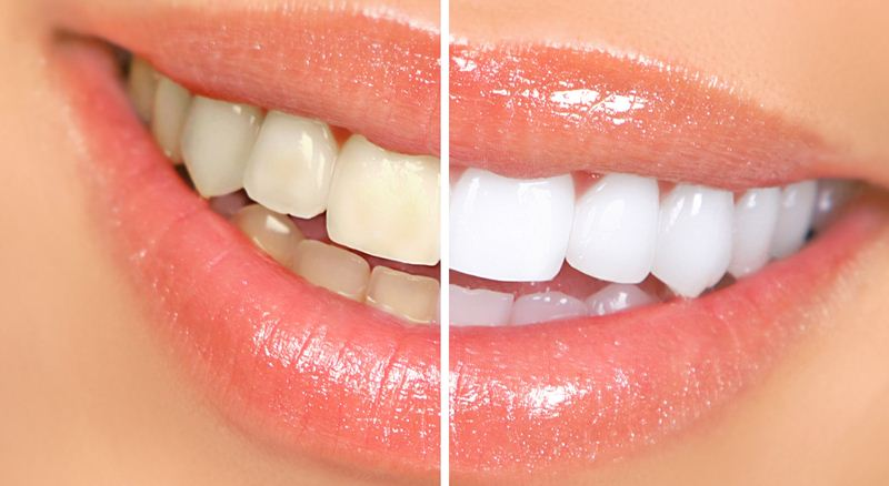 5-home-remedies-for-whiter-teeth