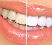 Thumb_5-home-remedies-for-whiter-teeth