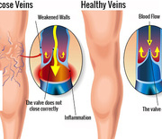 Thumb_varicose-veins-copy